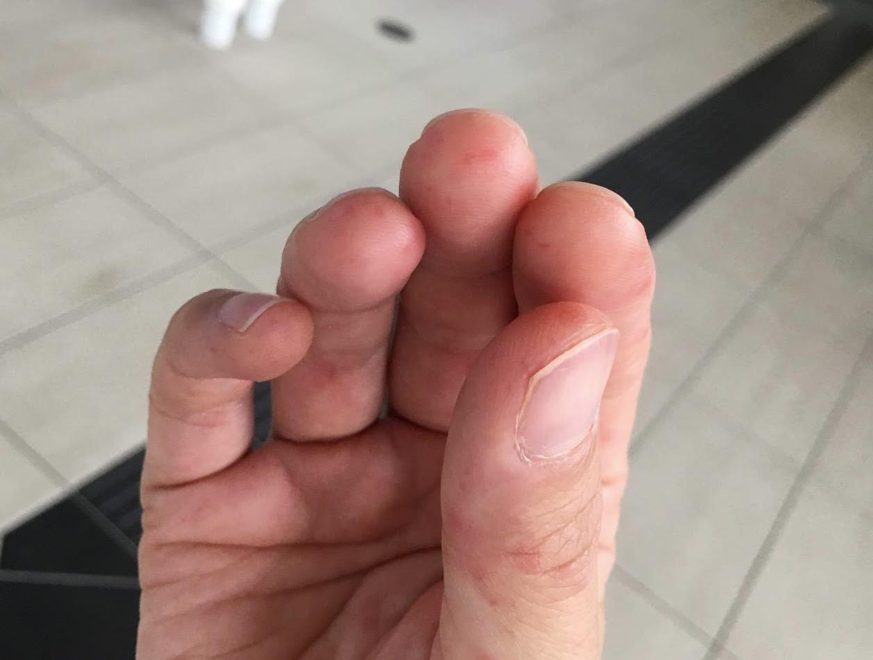 かゆみ 手足 口 病